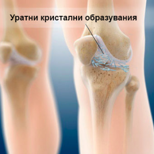 gout-s2-what-is-gout