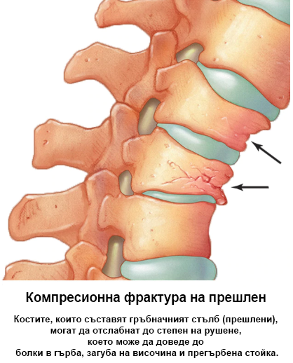 Остеопороза1
