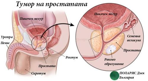 Тумор на простатата